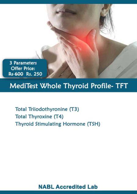 Thyroid Profile