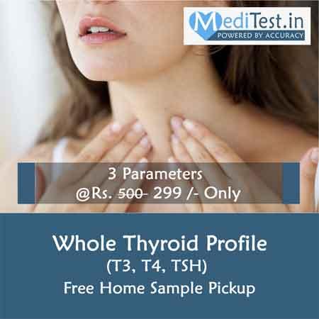 Thyroid Profile Cost in Delhi
